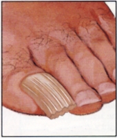 Ingrown Toenails Or Other Toenail Problems